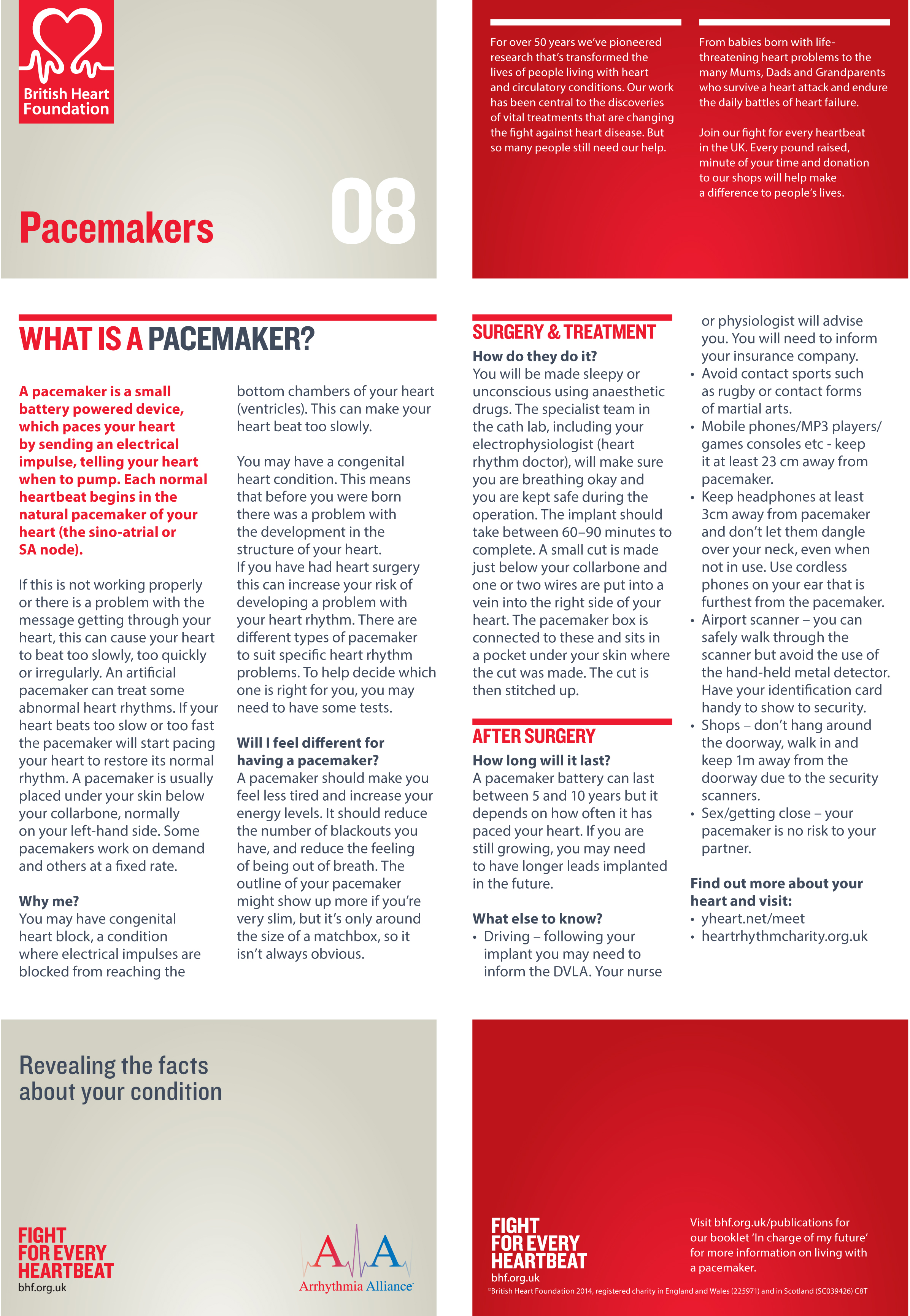Revealing the facts Pacemakers