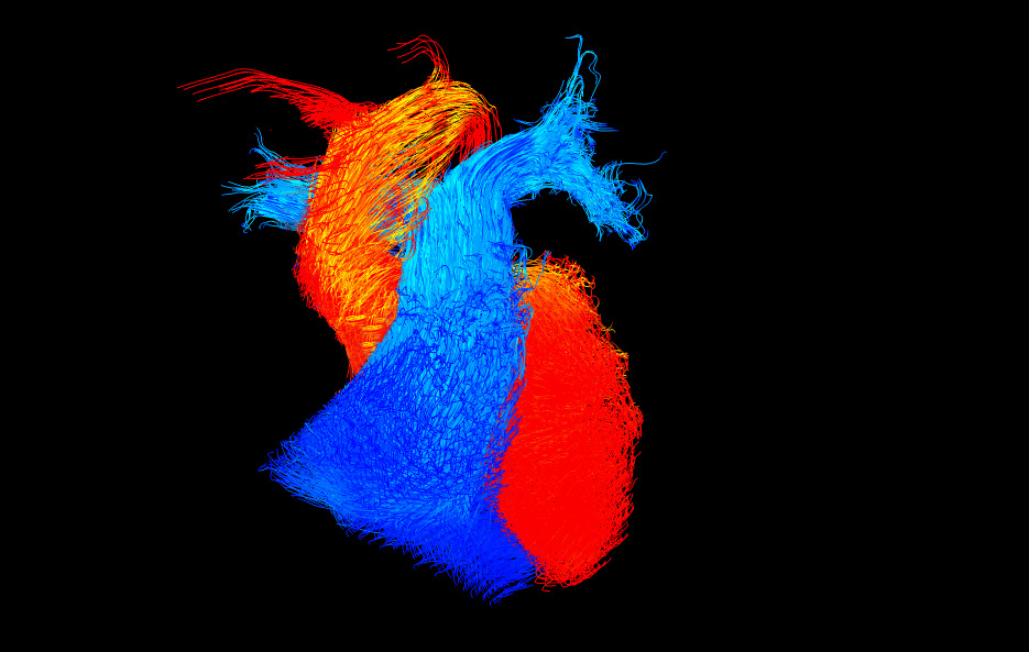 Reflections of research winner 2015/16 Shows blood flow through the heart
