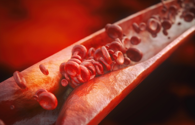 Rendering of red blood cells struggling to move down blocked blood vessel