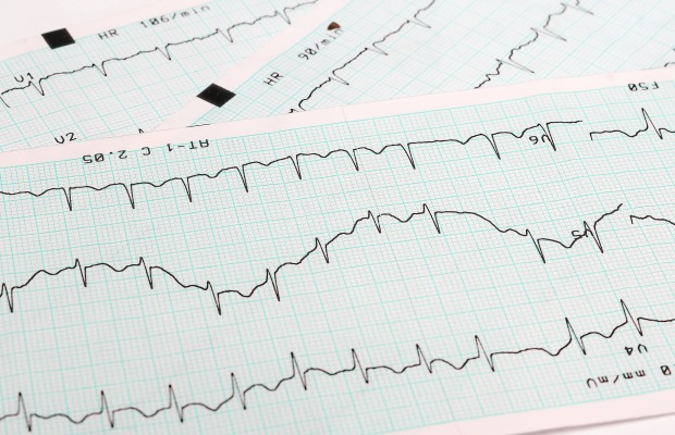 Printed sheets showing ECG traces