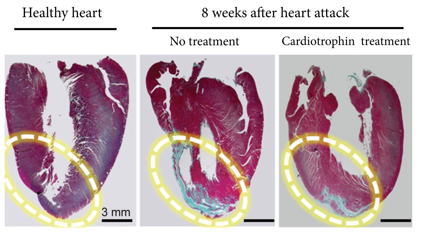 The far right image shows how a cardiotrophin treatment repaired heart muscle after a heart attack in a rat model. The blue areas are scar tissue and the red sections are healthy heart muscle.