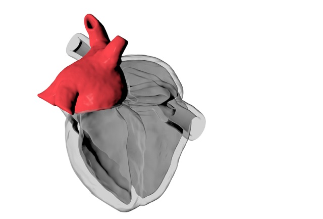 Computational model of the human heart
