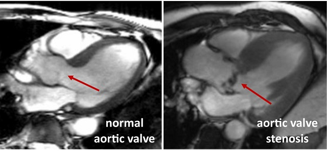 Aortic valve 640