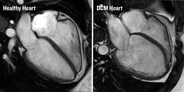 Two MRI scans of hearts. One has dilated cardiomyopathy and the other is a healthy heart.