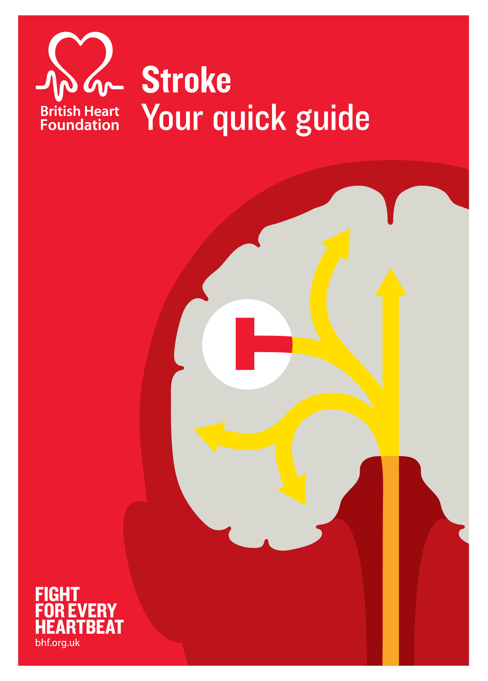 Stroke - your quick guide